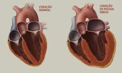 Reduzir gordura no coração pode diminuir risco de doenças