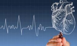 Pesquisadores desenvolvem algoritmo para detectar arritmia cardíaca