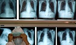 Timor-Leste tem um dos índices mais elevados do mundo de doença cardíaca reumática